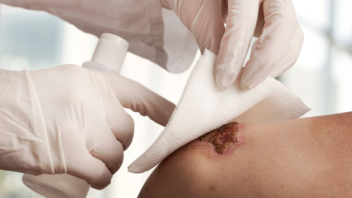 Wound Care & Management